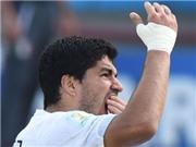 Uruguay khẳng định hình ảnh Suarez cắn Chiellini là photoshop