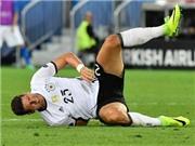Hung tin cho Đức: Mario Gomez chia tay EURO 2016 vì chấn thương
