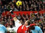"""Joe Hart tái hiện cú """"xe đạp chổng ngược"""" của Rooney"""