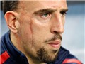 Franck Ribery chia tay tuyển Pháp ở tuổi 31