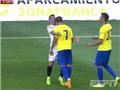 Đá giao hữu, cầu thủ thuộc biên chế Liverpool bị đối thủ hành hung trên sân