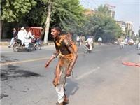 Sốc với cảnh anh thanh niên Pakistan bốc cháy trên phố