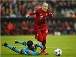 HLV Guardiola: 'Tôi không muốn Robben thay đổi sự ích kỉ của cậu ấy'