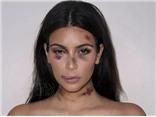 Các nữ siêu sao xuất hiện trong khuôn mặt ... bị đánh tơi tả?