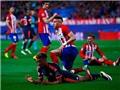 CẬP NHẬT tin sáng 28/4: Ronaldo bình phục 80% ở trận lượt về với Man City. M.U mặc áo sân khách ở Chung kết FA Cup