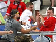 Bạo lực ở EURO là lời cảnh báo cho World Cup 2018