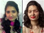 Khuôn mặt biến dạng vì bị tạt a-xít lên sân khấu Tuần lễ Thời trang New York
