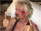 Tỷ phú nổi tiếng Richard Branson suýt chết vì tai nạn