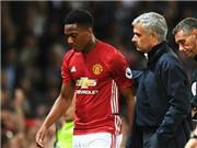 CHUYỂN NHƯỢNg ngày 27/12: Man United quyết giữ Martial. Arsenal không gia hạn với ngôi sao
